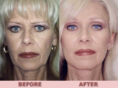 riverside cosmetic facelift before and after image