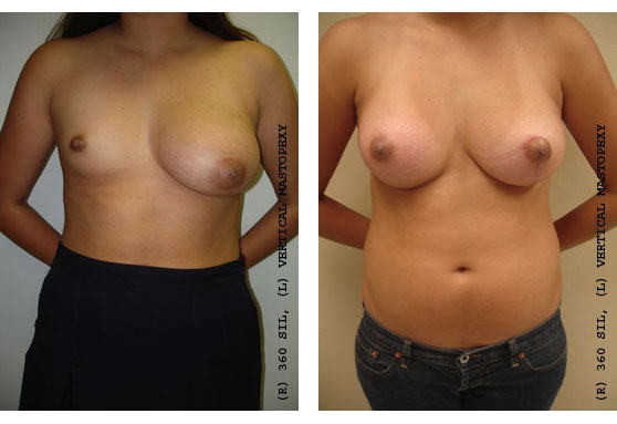 Breast Deformity Correction