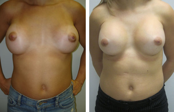 Breast Revision Correction