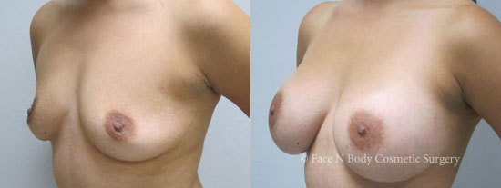 breast-augmentation-4b