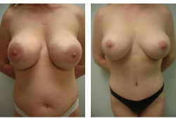 breast-reduction-1a