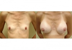 breast-s1a