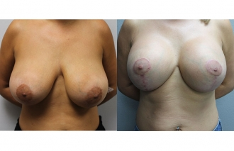 breast-mastopexy-101a