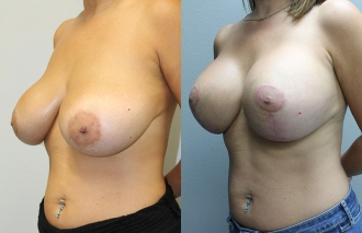 breast-mastopexy-101b