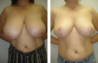breast-reduction-3a