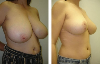 breast-reduction-3b