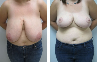 breast-reduction-4a