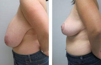 breast-reduction-4b