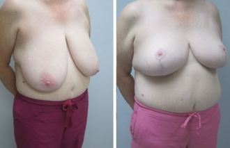 breast-reduction-5b