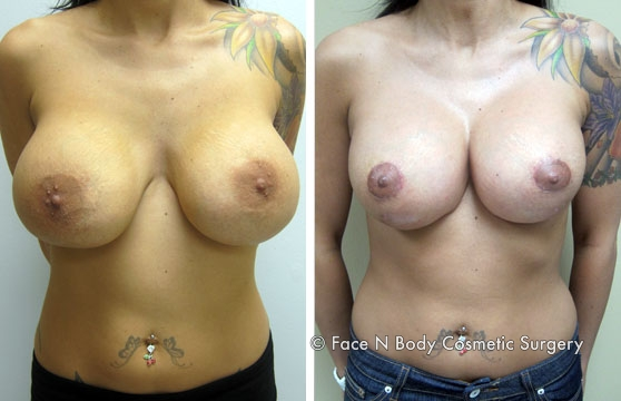 breast-revision-1b