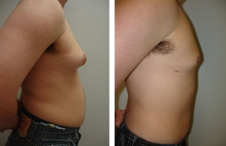 male-breast-reduction-1b